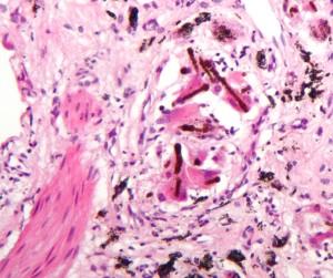 Hochauflösendes Bild von Asbestose in der Lunge